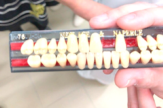 Студенты из Санкт-Петербурга придумали, как удешевить зубные протезы