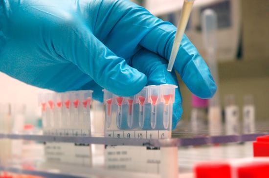 Россияне смогут провериться на ВИЧ на работе
