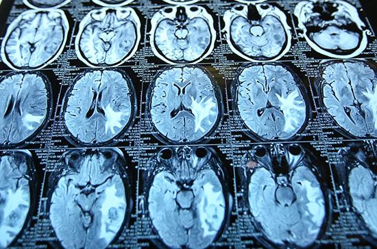 Учёные: продолжительность жизни зависит от активности нейронов мозга