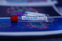 Суточный прирост заболевших коронавирусом в Сербии приблизился к 5 тыс. человек