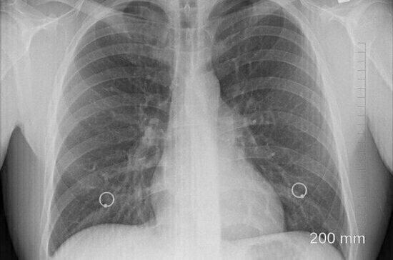 Учёные назвали самые распространённые симптомы рака лёгких